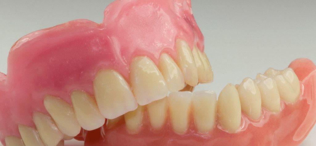 выбор зубного протеза необходимо делать вместе со стоматологом