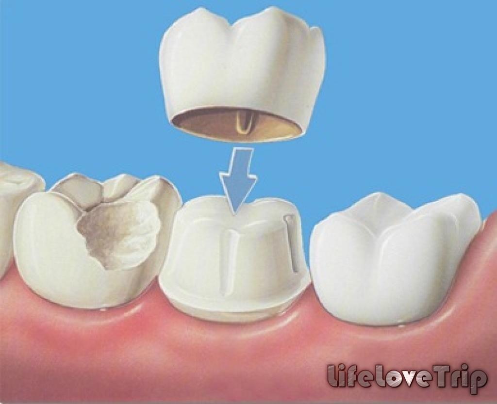 коронка позволяет сохранить корень зуба