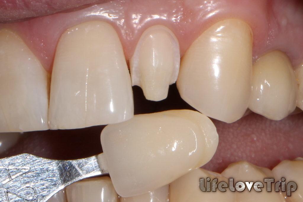 винницы имитируют настоящий зуб