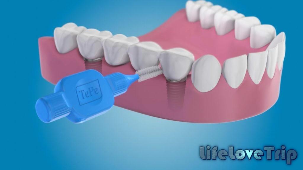 Зубной ёршик идеально вычищает пространство между зубами.