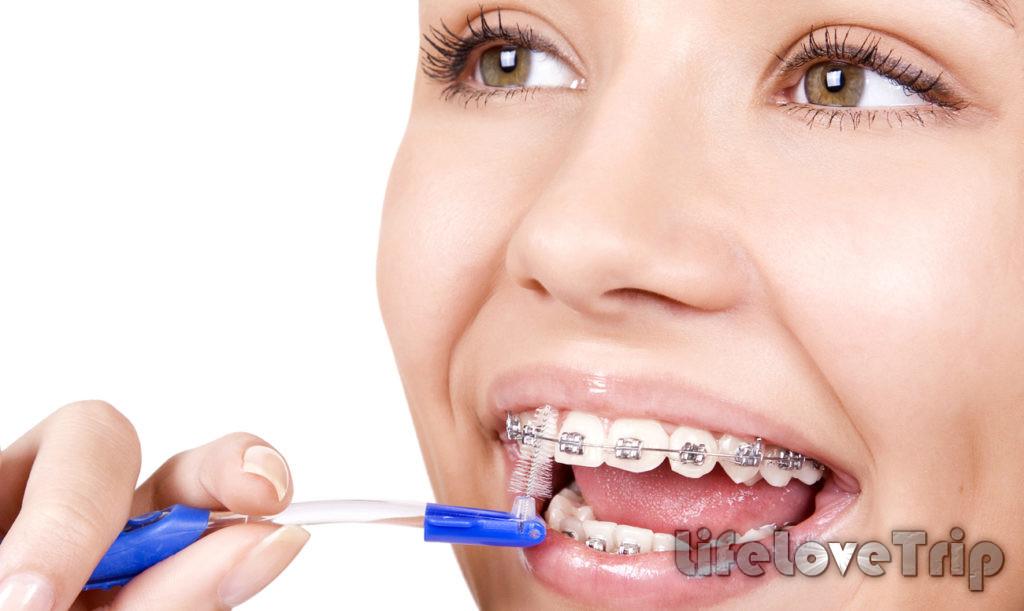 Зубной ёршика необходим для качественной чистки брекетов.